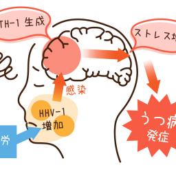 うつ病に「ほぼ全員が持っている」ウイルスが関与? | 健康 | ダイヤモンド・オンライン